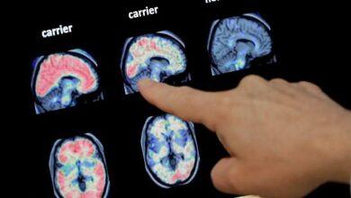 Photo of Covid-19 hastalarındaki beyin hasarının ilk detayları ortaya çıktı